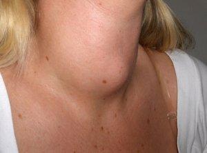 Йододефицит в организме при заболевании щитовидки