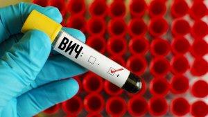 Положительный результат на ВИЧ и лечение