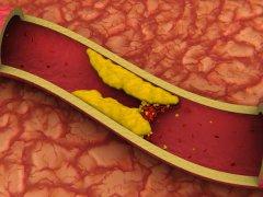 Как избавиться от повышенного холестерина: новый взгляд на проблему