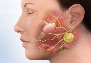 Воспалилась слюнная железа: причина возникновения, основные методы лечения