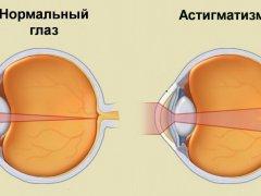 Сложный гиперметропический астигматизм: причины, симптомы и методы лечения