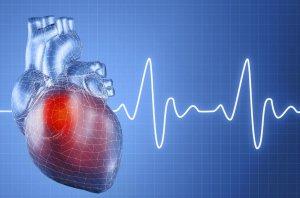 Аномалия в строении сердца