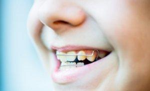 Использование ретейнеров для фиксации зубов