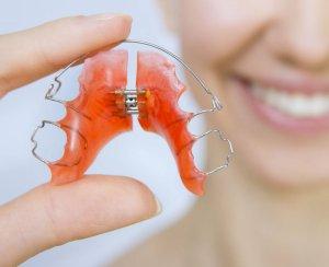 Чистка ретейнера зубной пастой