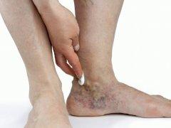 Болезни сосудов ног: терапия и основные рекомендации по профилактике