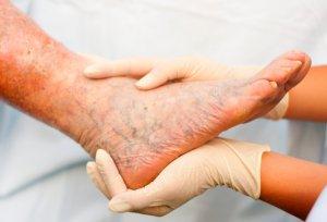 Терапия заболеваний ног