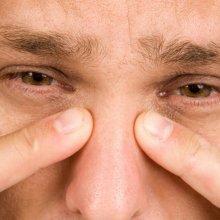 Этмоидит: симптомы и лечение, негативные последствия