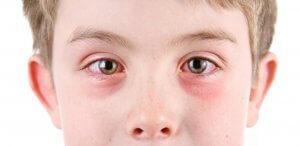 Осложнения у детей после этмоидита