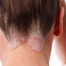 Экзема на голове: лечение дерматологического заболевания