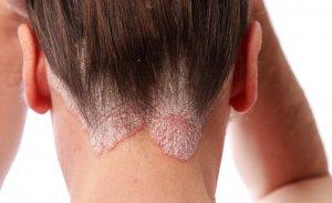 Экзематозное поражение кожи головы