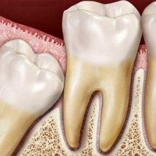 Растет зуб мудрости и болит десна: что делать до похода к стоматологу