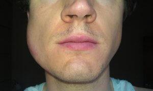 Гнойное воспаление на щеке со стороны растущего зуба мудрости