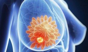 Симптоматика при листовидной фиброаденомы молочной железы