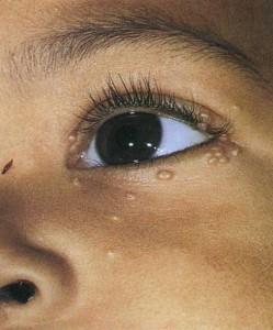 Папиллома: причины и лечение