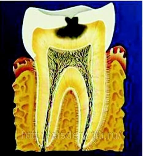 Средний кариес зубов и его лечение