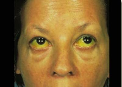 Симптомы холангита и его лечение