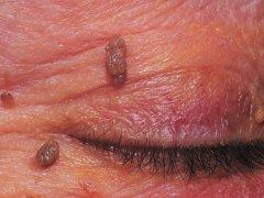 Что такое папилломы кожи?