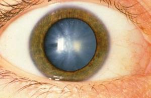Народное лечение катаракты