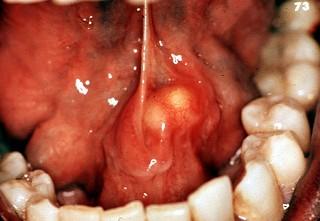 Симптомы воспаления слюнной железы