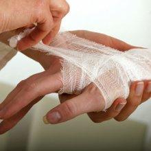 Глубокий порез или рана