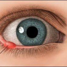 Как избавиться от ячменя на глазу?