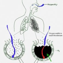 Лечение и реабилитация после пневмонии