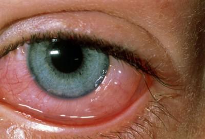 Как выбрать глазные капли от аллергии