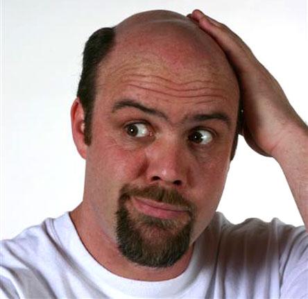 Лечение выпадения волос у мужчин различными средствами