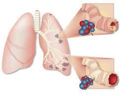 Какие бывают виды и причины астмы