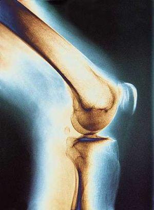 Гомеопатия при артрите