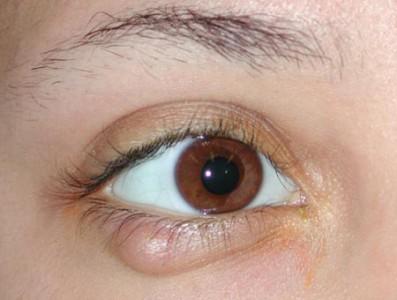 Ячмень или чирей на глазу