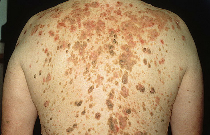 Себорейный кератоз - заболевание людей зрелого возраста