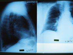 Диагностика заболеваний легких