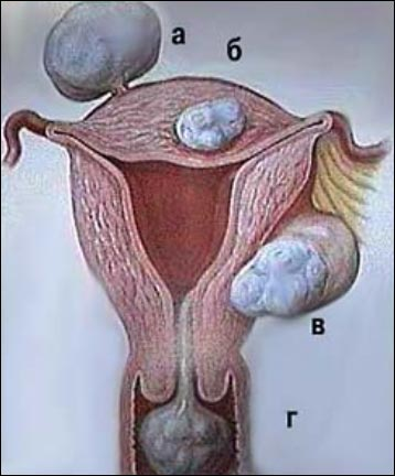 Лечение фибромы
