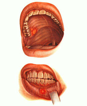 Герпес губ, герпес во рту и герпес глаз