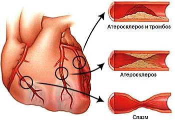 Болезнь стенокардия опасна