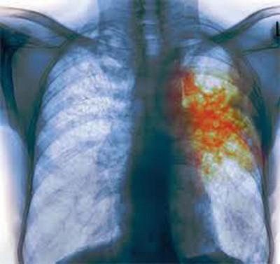 Симптомы туберкулеза у взрослых