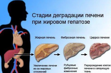 Насколько долго длится лечение жирового гепатоза?