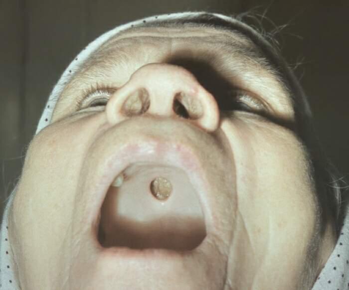 Как влияет перенесенный сифилис на будущего ребенка
