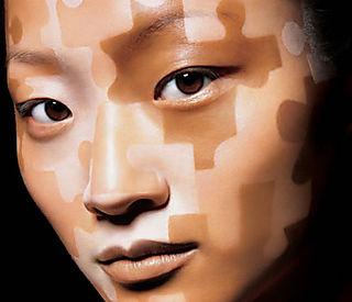 От чего появляются белые пигментные пятна не коже