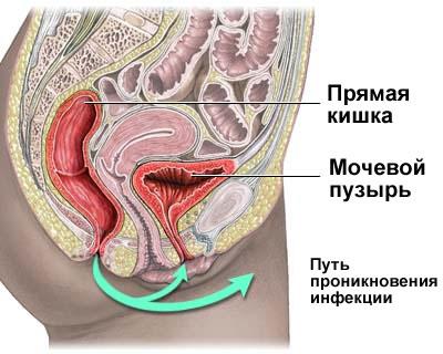Инфекция - цистит