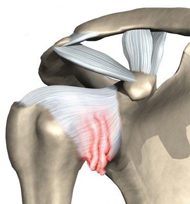 Лечение боли в плечевом суставе