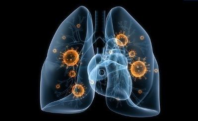 Hародное лечение воспаления легких – в помощь лекарствам