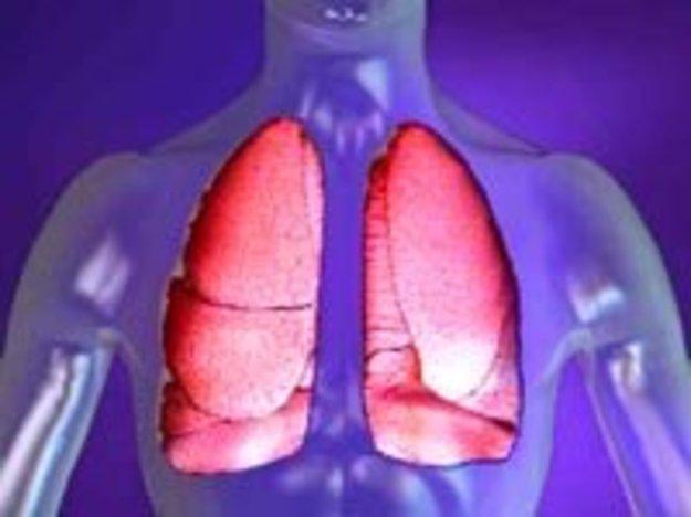 Признаки долевой пневмонии