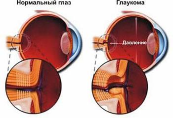Глаукома глаза - причины и симптомы