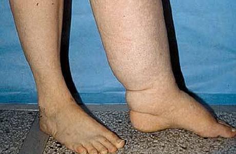 Лечение лимфедемы (отек мягких тканей)