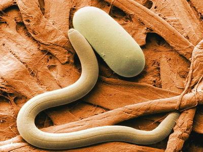 Профилактика паразитарных болезней