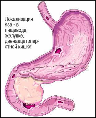 Прободная язва двенадцатиперстной кишки - опасное состояние