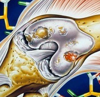 Какой поможет врач при артрите?