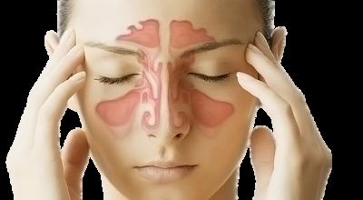 Народные методы при гайморите: лечение и эффективность